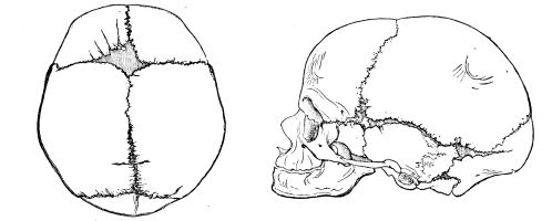 Newborn skull profile showing sutures